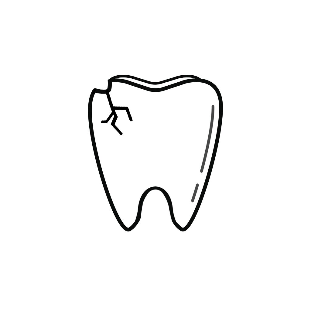 If you have chipped your tooth, there's no need to panic. Here are a few things we can do to restore your beautiful smile: